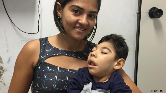 Majka s djetetom koje boluje od mikrocefalije