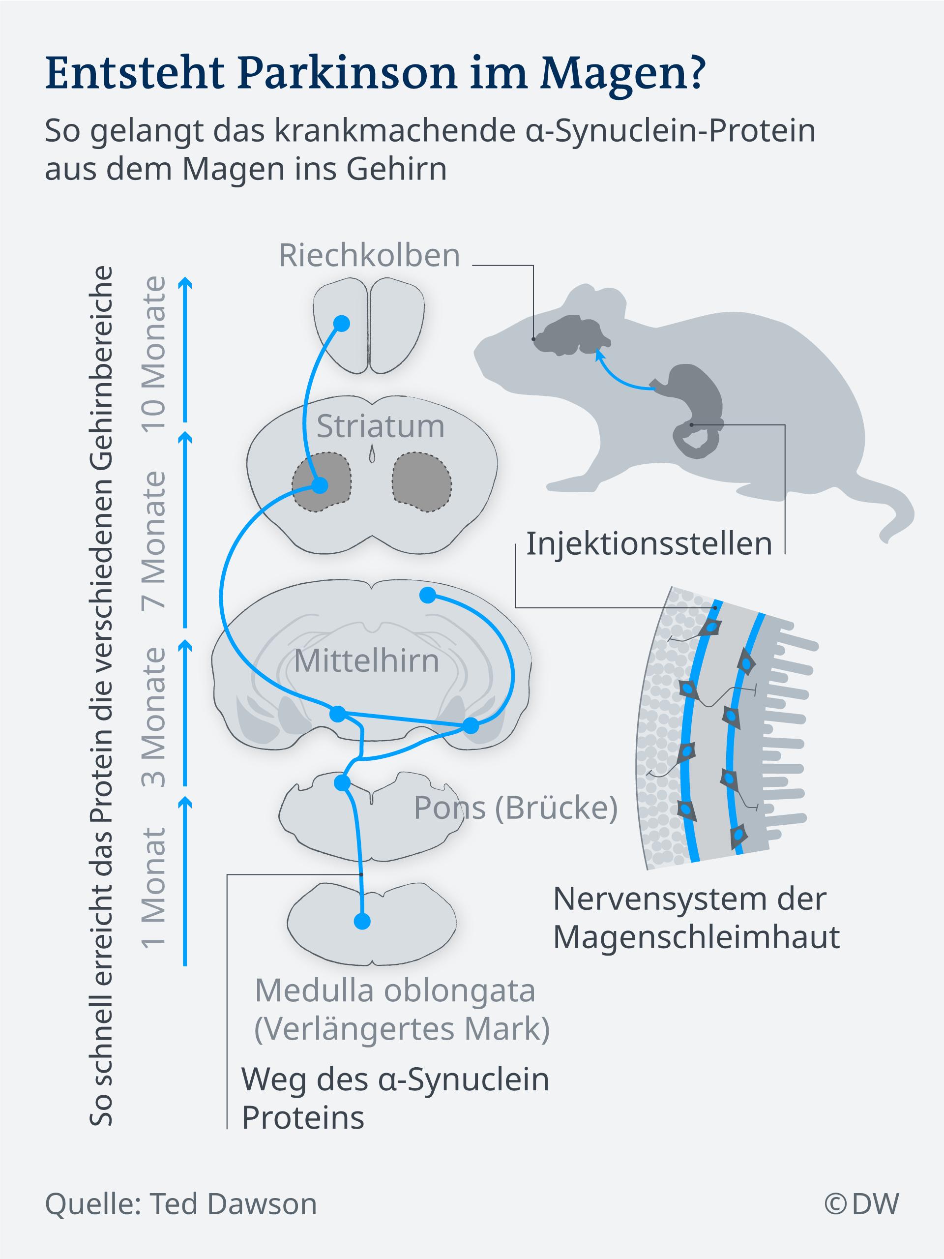 Infografik entsteht Parkinson im Magen DE