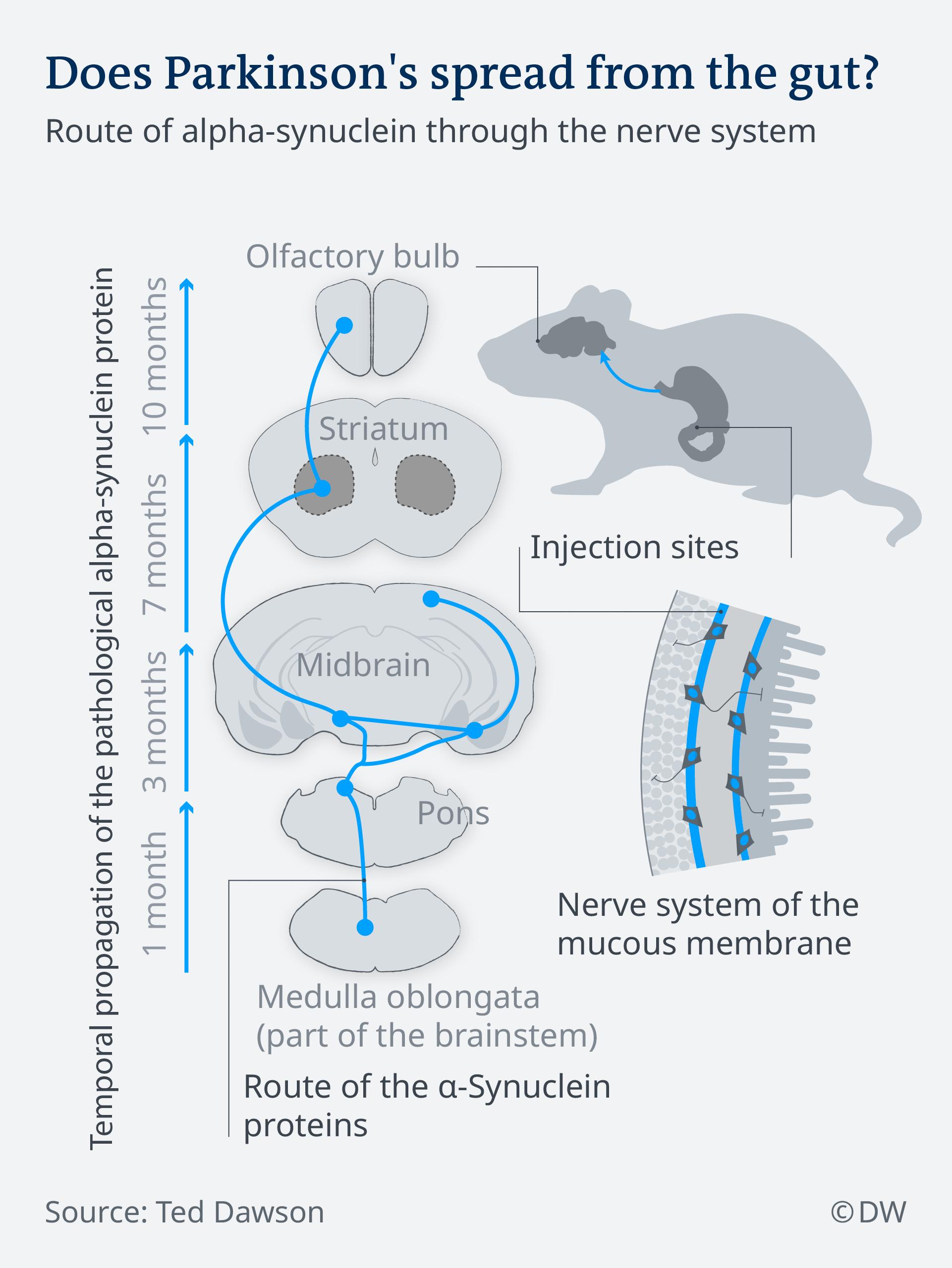 Infografik entsteht Parkinson im Magen EN