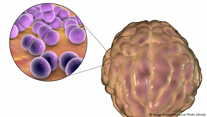 Folgen einer viralen Meningitis