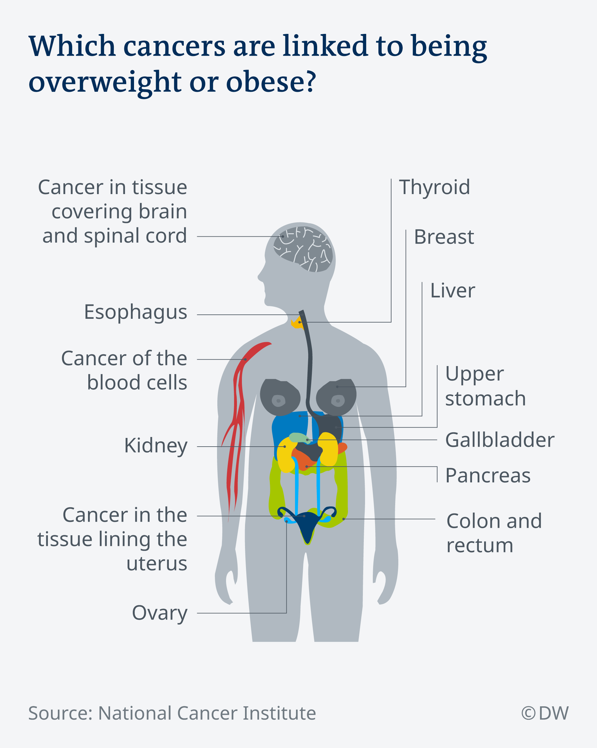 Overweight-related diseases