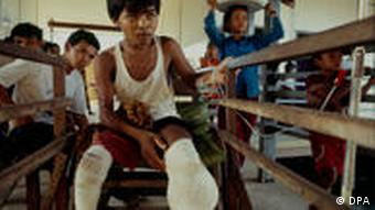 There are an estimated 60,000 landmine victims in Cambodia