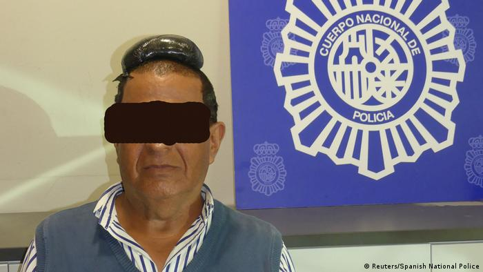Man accused of smuggling drugs under toupee