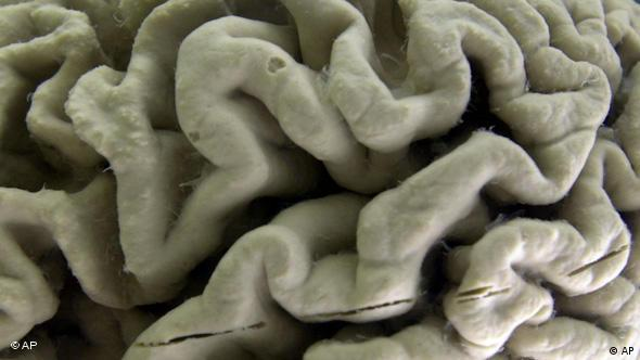 Image of a section of a human brain with Alzheimer's disease