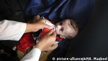 In this Aug. 26, 2019, photo, a health worker feeds a supplement as part of a nutrition regime to 7-month-old Abdullah, who is suffering from malnutrition at UNICEF clinic in Jabal Saraj north of Kabul, Afghanistan. Days ago, he was at an emergency ward. (AP Photo/Rafiq Maqbool) |