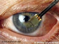 El implante dispone de 1.500 fotocélulas instaladas en un microchip de tan sólo tres milímetros.