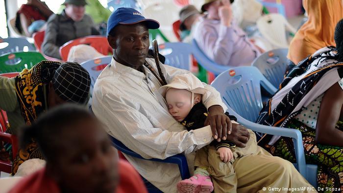 Албиносите в Танзания: живот в опасност