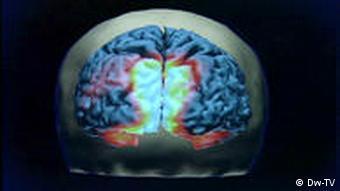 مغز مردان و زنان ساختار متفاوتی دارد