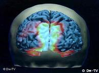 El cerebro humano, motivo de investigación sobre el uso de teléfonos celulares.