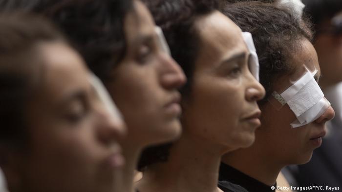 Se estima que al menos más de 230 personas han recibido un severo daño ocular durante las manifestaciones. (Getty Images/AFP/C. Reyes)