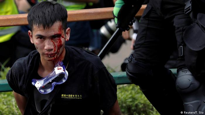 Honkong Proteste Polytechnische Universit?t | Verletzter (Reuters/T. Siu)