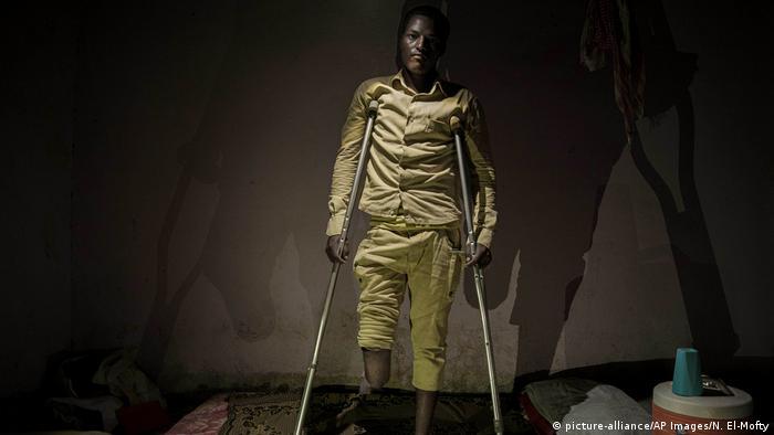 Der Äthiopische Flüchtling Abdul-Rahman Taha, dessen Bein amputiert werden musste (picture-alliance/AP Images/N. El-Mofty)
