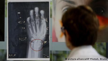x-ray showing a left hand (picture-alliance/AP Photo/L. Bruno)