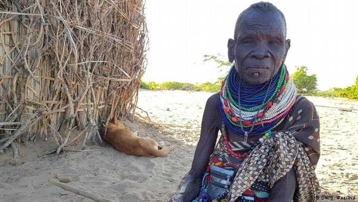 Kenia Turkana | Unterernährung