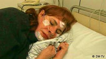 27.01.2010 DW-TV fit und gesund schlafentzug 2