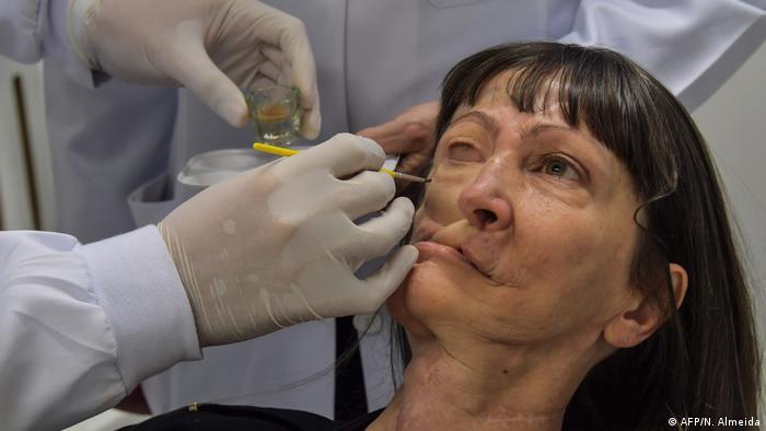 Billig-Prothesen geben Patienten ein neues Gesicht