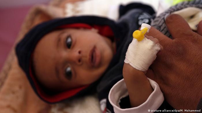 طفل مصاب بالملاريا في أثناء معالجته في مستشفيات العاصمة اليمنية صنعاء بتاريخ 13.11.2019
