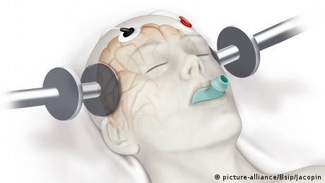 Symbolbild Elektroschocktherapie