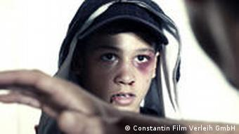 Still from the movie 'Zeiten aendern dich' showing a young boy with a black eye