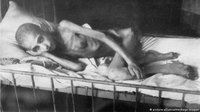 Ребенок, переживший блокаду. Ленинград, 1944 год