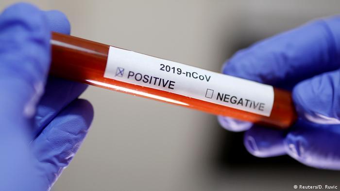 Mãos com luvas seguram tubo com sangue e etiquete indicando coronavírus