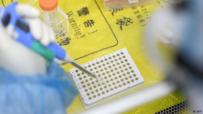 China Wuhan Labor testet auf Coronavirus