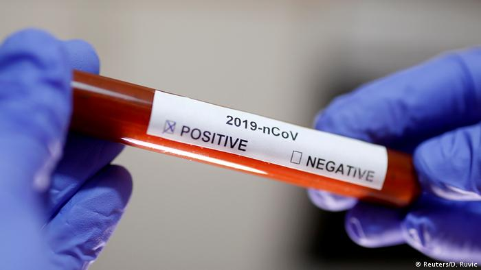China Coronavirus Symbolbild