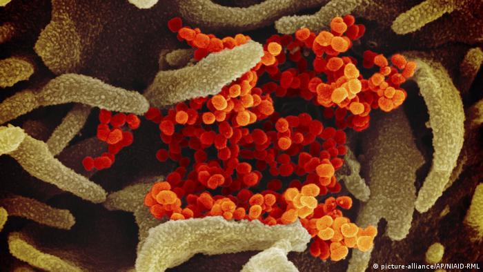 Imagem de microscópio mostra o vírus Sars-Cov-2 sobre células cultivadas em laboratório