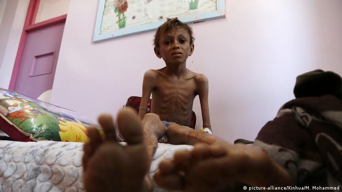 Jemen unterernährtes Kind im Al-Sabeen Hospital in Sanaa