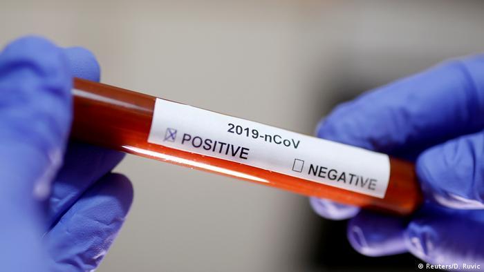 Virus se sve više širi, pa svi željno iščekuju cjepivo