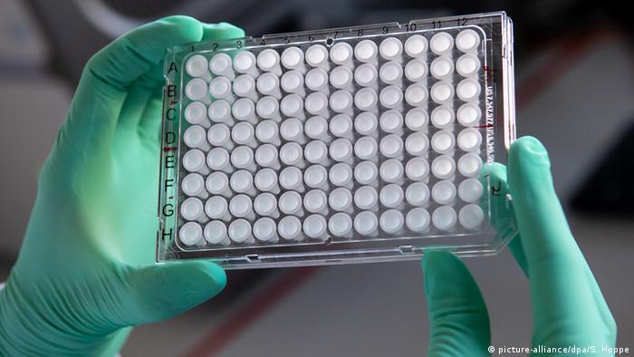 ПЛР-тест у приватній лабораторії коштує до 2500 гривень