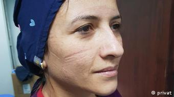 Yoğun bakım hemşiresi Semra Tezer'in yüzünde uzun çalışma saatlarinin izlerini görmek mümkün.