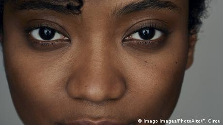 DW: Ρατσισμός και στη βιομηχανία ομορφιάς;