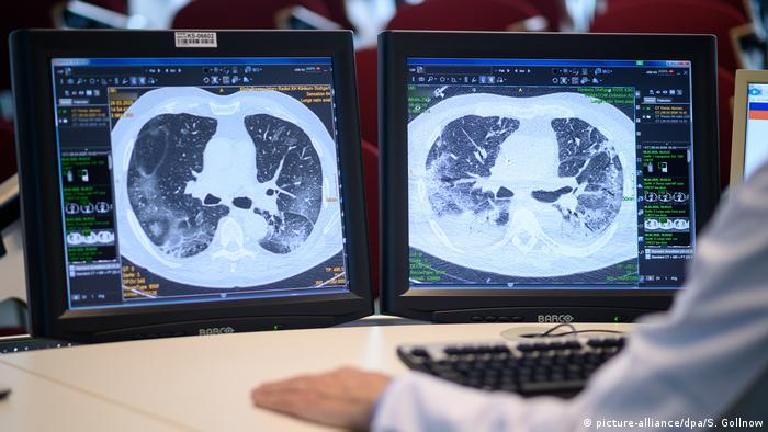 A doctor, looking at X-ray pictures of a lung.