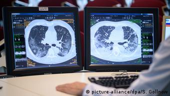 Οι ειδικοί θεωρούν ότι οι ασθενείς με σοβαρά συμπτώματα θα έχουν προβλήματα στην αναπνοή για μεγάλο χρονικό διάστημα