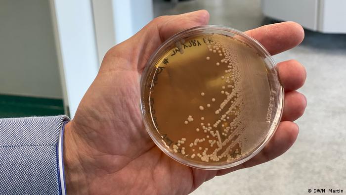 صورة لخلايا الخميرة لانتاج بروتين فيروس كورونا