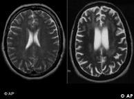 دماغ کے اسکین نےاس بات کی تصدیق کی کہ سیل فون کے باعث دماغ کے خلیے متاثر ہوتے ہیں