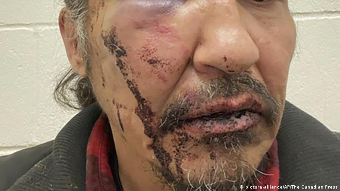 Allan Adam with a bloodied face (picture-alliance/AP/The Canadian Press)