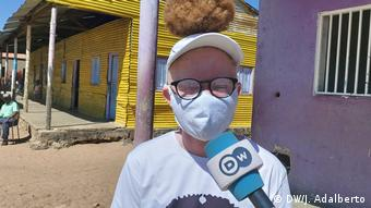 Angola | Internationaler Tag des Albinismus | Unterstützung