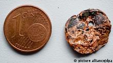 BdT Ärzte entfernen verschluckte und vergessene Münze aus Lunge