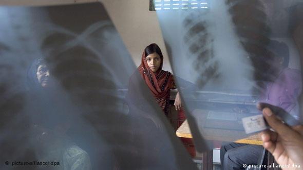 Mädchen betrachtet das Röntgenbild ihrer Lunge (Foto: dpa)
