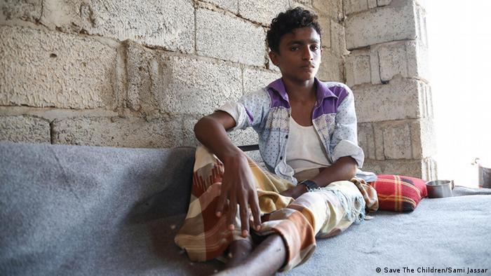 Ovaj dječak je već dva puta teško ranjen u zračnim napadima