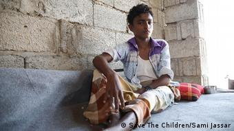 A Yemeni boy sits with his injured legs in front of him (Save The Children/Sami Jassar)