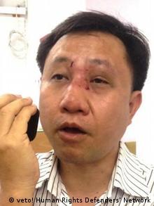 Vietnam Nguyen Bac Truyen nach einem Überfall durch die vietnamesischen Sicherheitskräfte