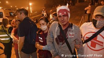 Врачи скорой уводят раненого во время протестов в Минске