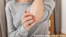 ILLUSTRATION - Eine Frau kratzt sich am 18.01.2019 in einer Wohnung in Hamburg am Arm (gestellte Szene). Foto: Christin Klose | Verwendung weltweit