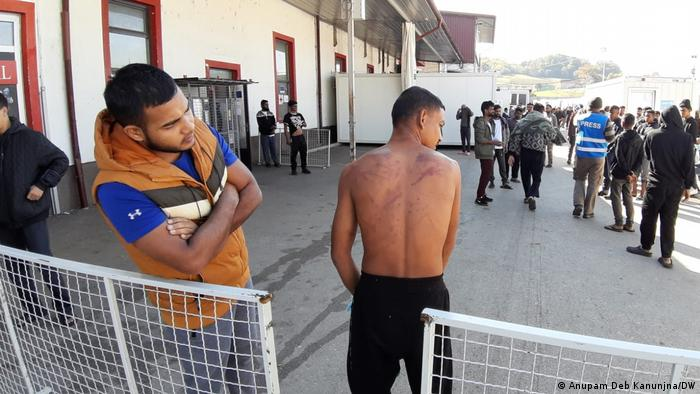Migrants at the Miral camp show bruises they claim came from Croatian police