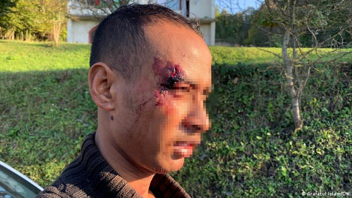A man with a wound on his forehead