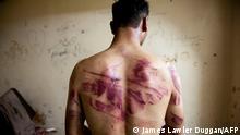 Deutschland Justiz l Deutscher erstattet Anzeige beim GBA wegen Folter in Syrien