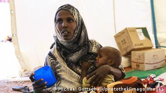 Υποσιτισμένη γυναίκα στην Αιθιοπία